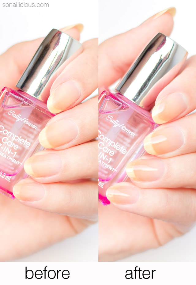 sally hansen complete care nail treatment review, before and after